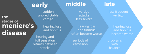 menieres-disease-stages